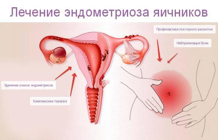 Возможна ли беременность при аденомиозе