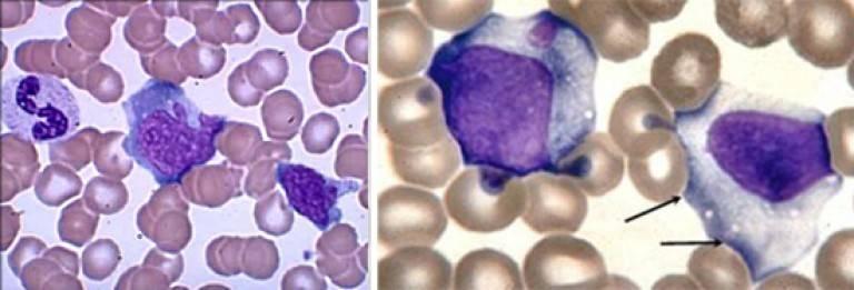 Атипичные мононуклеары в общем анализе крови инвитро