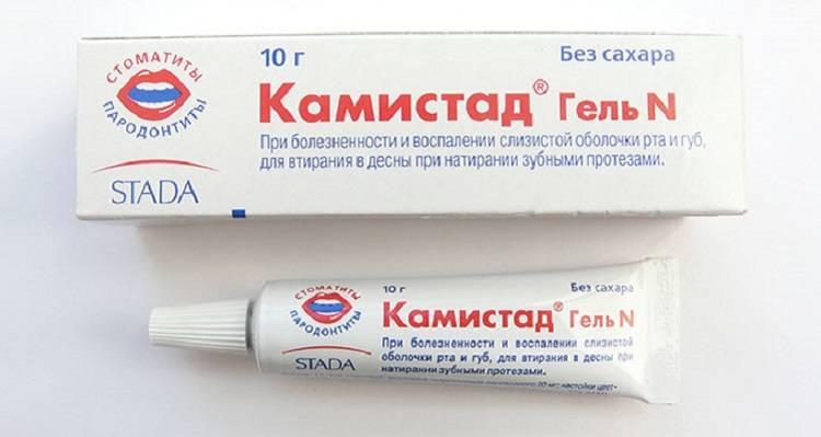 Стоматит: лечение, лекарства, виды, профилактика