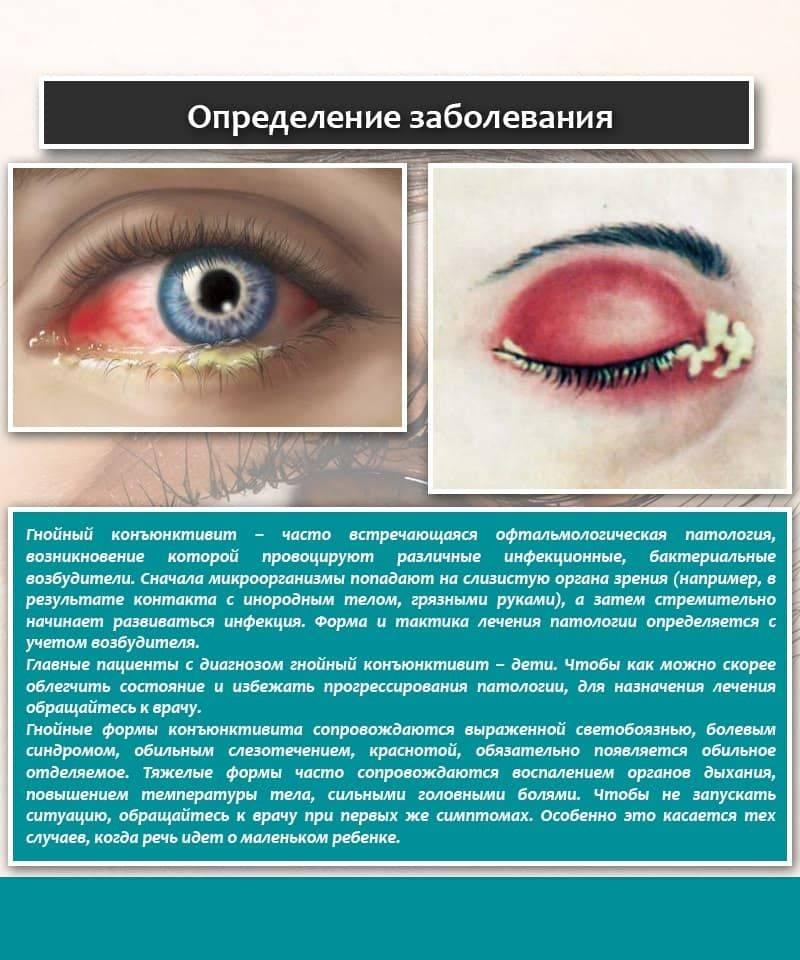Вирусный конъюнктивит, как он проявляется и лечится? - энциклопедия ochkov.net