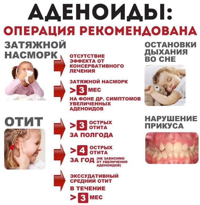 Лечение аденоидов у детей по уникальной методике