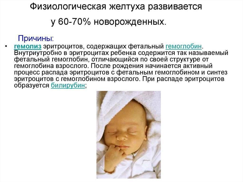 Почему у младенца желтые белки глаз