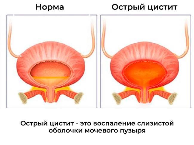 Цистит у женщин, симптомы и лечение