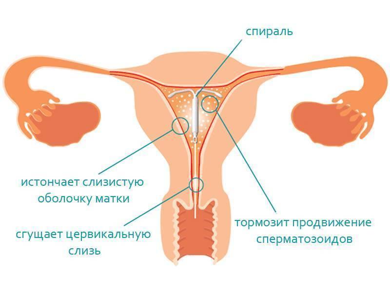 Установка внутриматочной спирали (вмс) в москве. цена - 2650 руб. в центре «клиника abc»