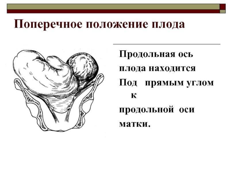Предлежание плода – что нужно знать будущей маме