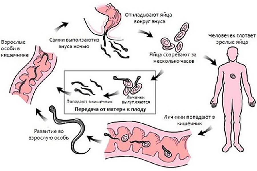 Глистная инвазия (глисты): симптомы и лечение