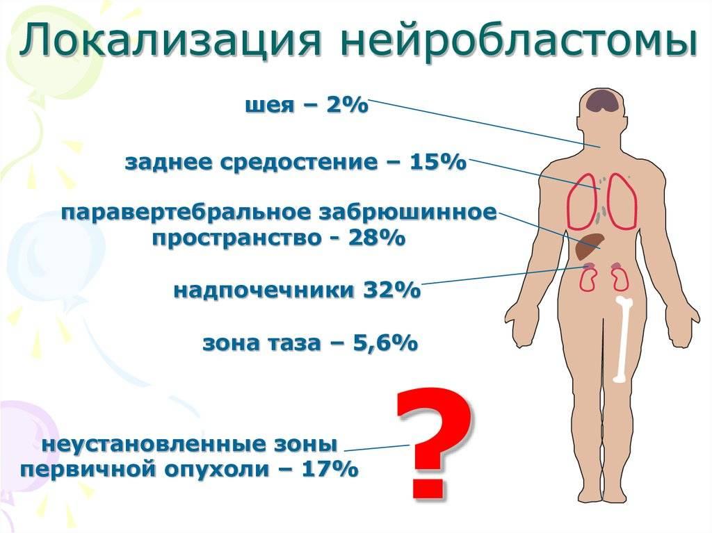 Тимома: симптомы, лечение и прогноз, что это за болезнь, тимома средостения и вилочковой железы