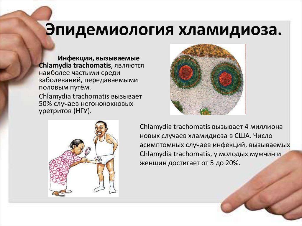Хламидиоз у детей
