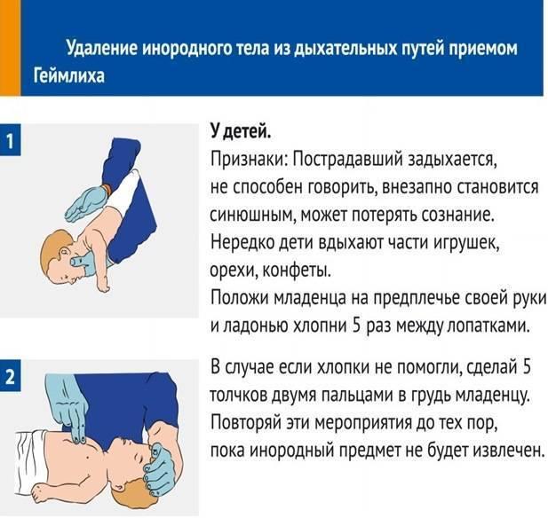 Первая помощь ребенку, который подавился или поперхнулся