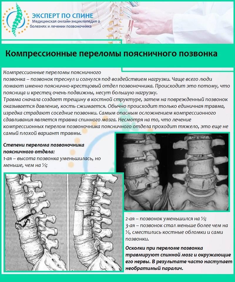Лечение компрессионных переломов позвоночника у детей и пожилых   нсклиник