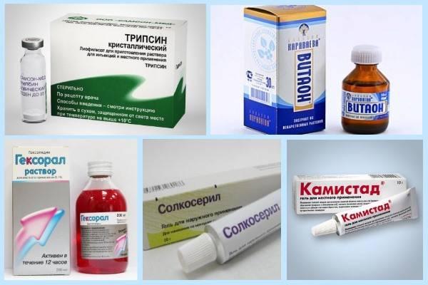 Афтозный стоматит у детей - профилактика и способы лечения