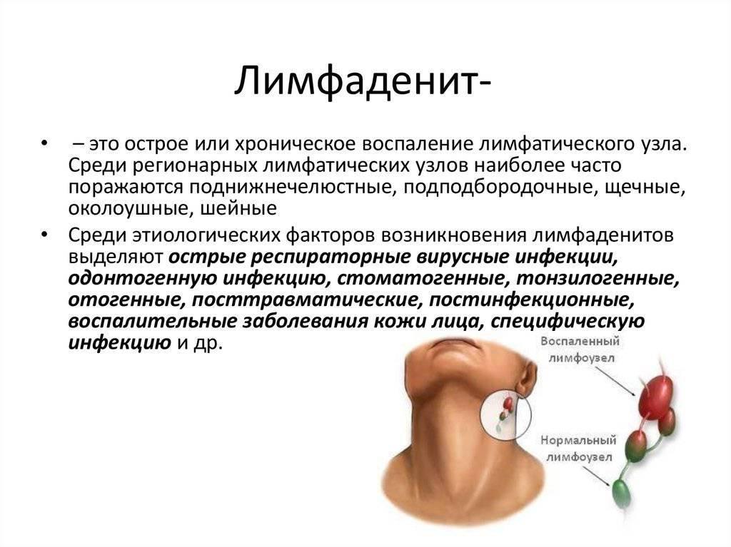 Лимфаденит - причины, симптомы, лечение и профилактика
