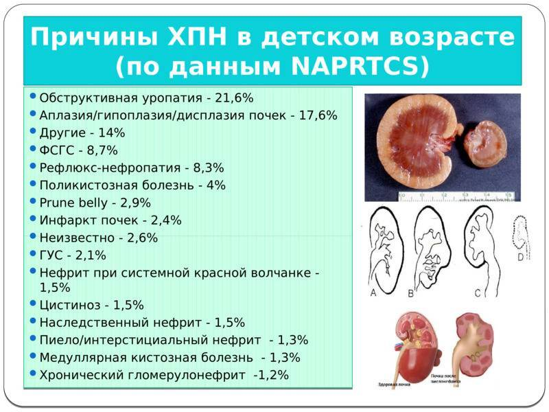 Пиелонефрит - симптомы, профилактика и лечение