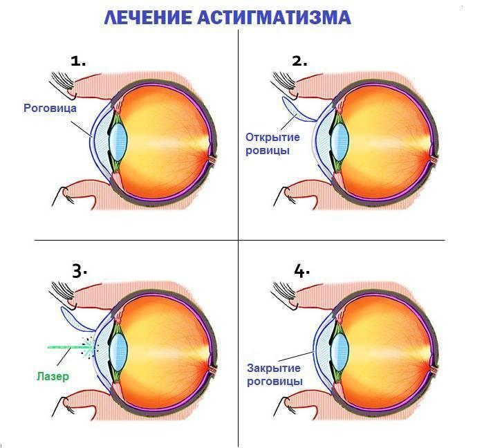 Астигматизм у детей — 6 видов астигматизма, лечится или нет