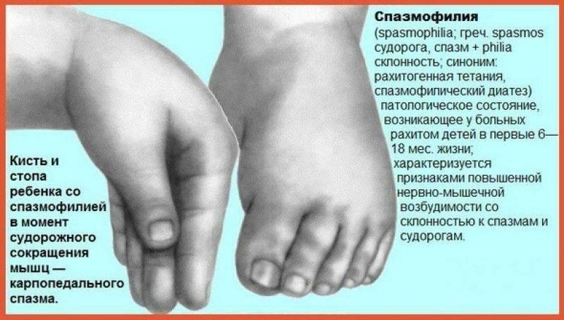 Мышечная дистония - диагностика, лечение, причины. синдром мышечной дистонии.