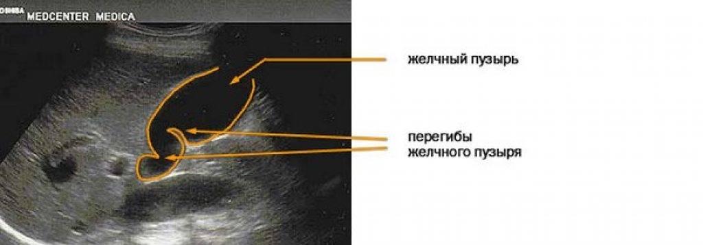 Лабильный перегиб желчного пузыря у ребенка   tsitologiya.su
