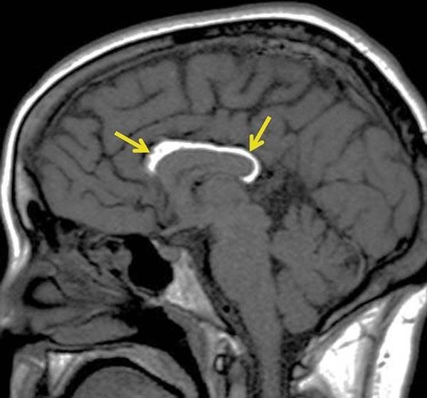 Боковая киста шеи – бранхиогенная опухоль, причины, диагностика и лечение