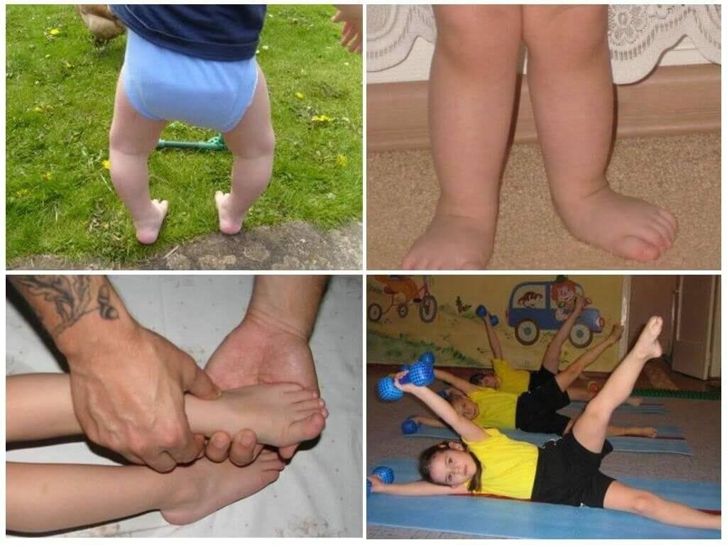 Остеопат при вальгусе у детей – клиника остеосфера
