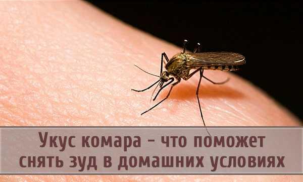 Покусали комары: как быстро снять отек и зуд