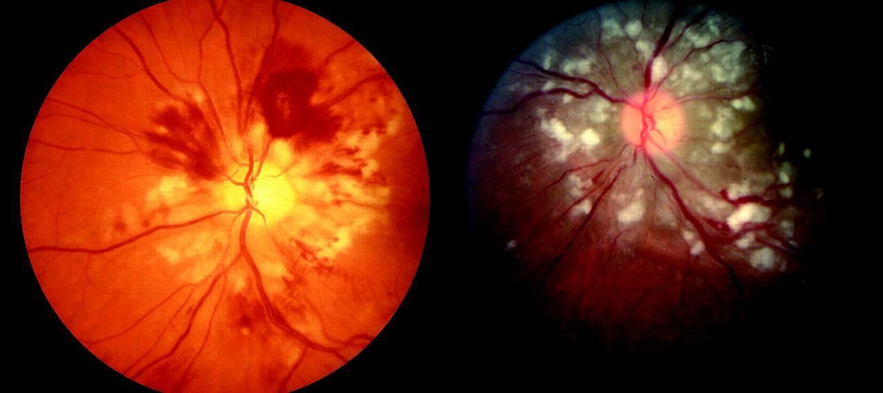 Заболевания сетчатки глаз - симптомы, лечение