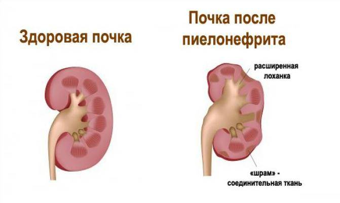 Гидронефроз, симптомы и лечение гидронефроза | медицинский центр липецка
