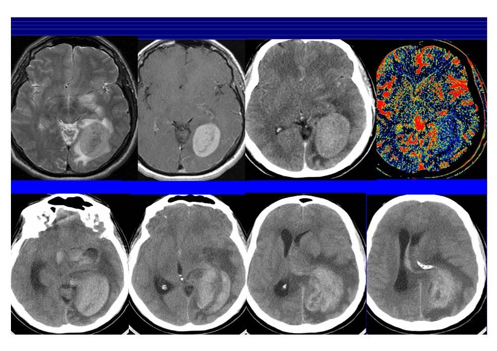 Стадии рака головного мозга: симптомы, диагностика, лечение, фото