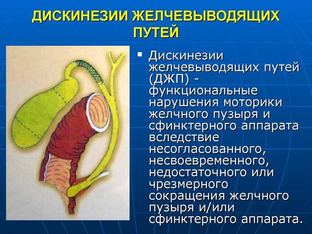Джвп. симптомы и лечение дискинезии желчевыводящих путей