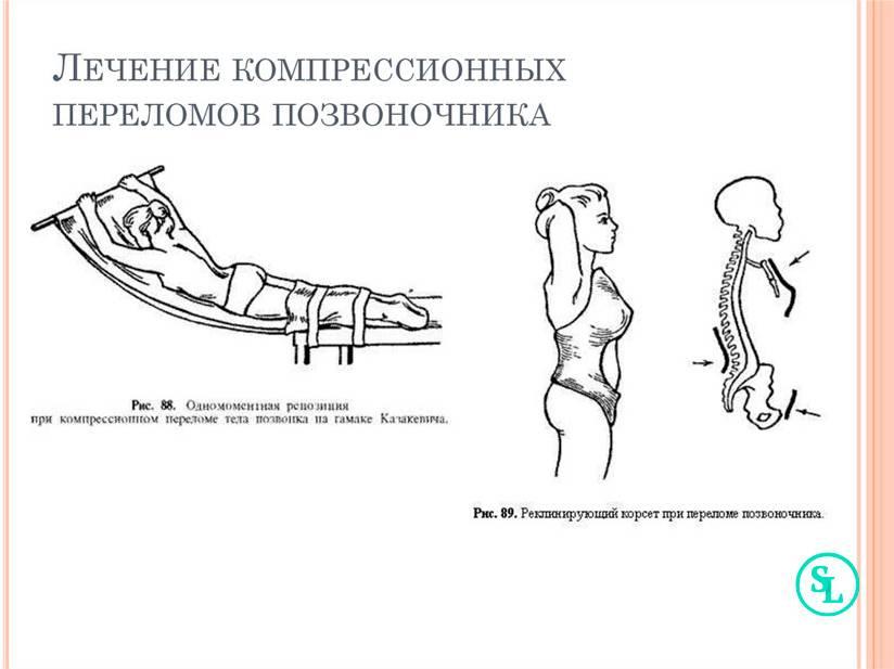 Компрессионный перелом позвоночника у детей    артромедцентр