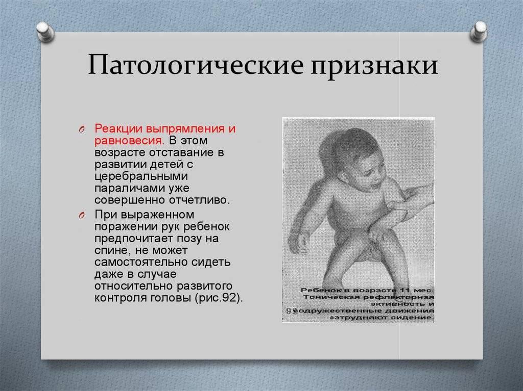Абсансная эпилепсия у детей - лечение в клинике