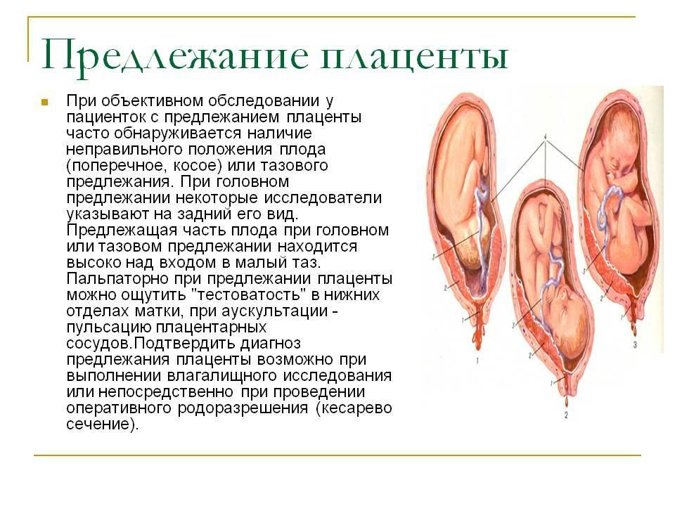 Плацента по передней стенке – что это значит, как еще может быть расположен орган в матке?