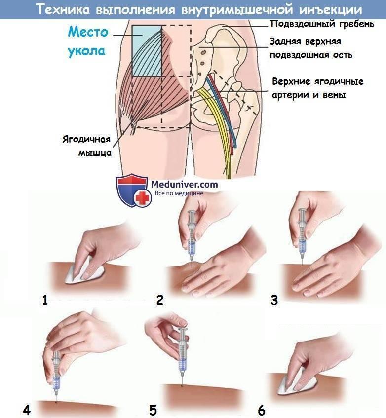 Липолитики для похудения - что это такое: инъекции липолитиков в живот, лицо, отзывы, фото до и после