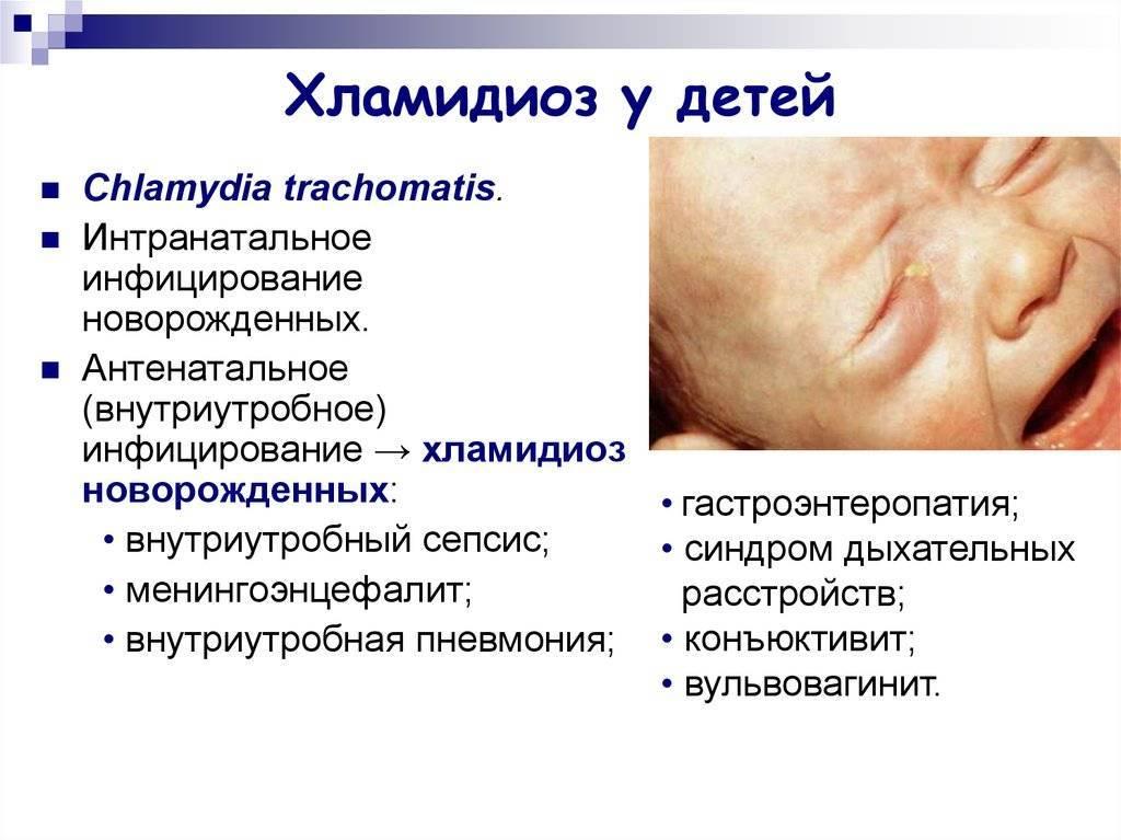 Chlamidia и хламидиоз: как лечить и чем вызван?