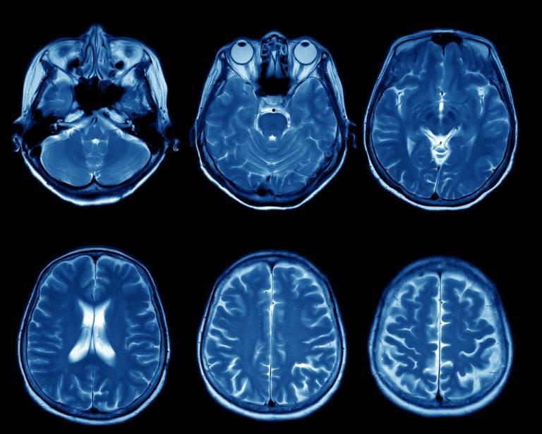 Кт головного мозга: что показывает диагностика и какие заболевания помогает выявить?