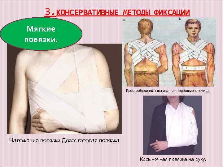 Перелом ключицы - лечение, симптомы, причины, диагностика | центр дикуля