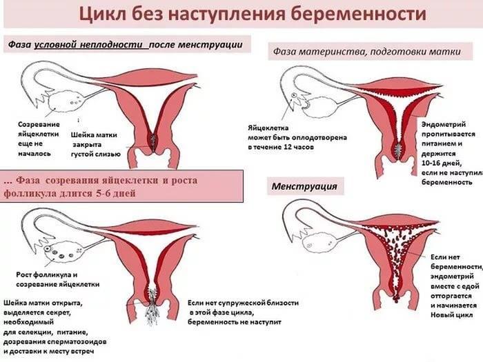 Аденомиоз матки: что за диагноз, симптомы у женщин разного возраста, причины возникновения, лечение - причины, диагностика и лечение