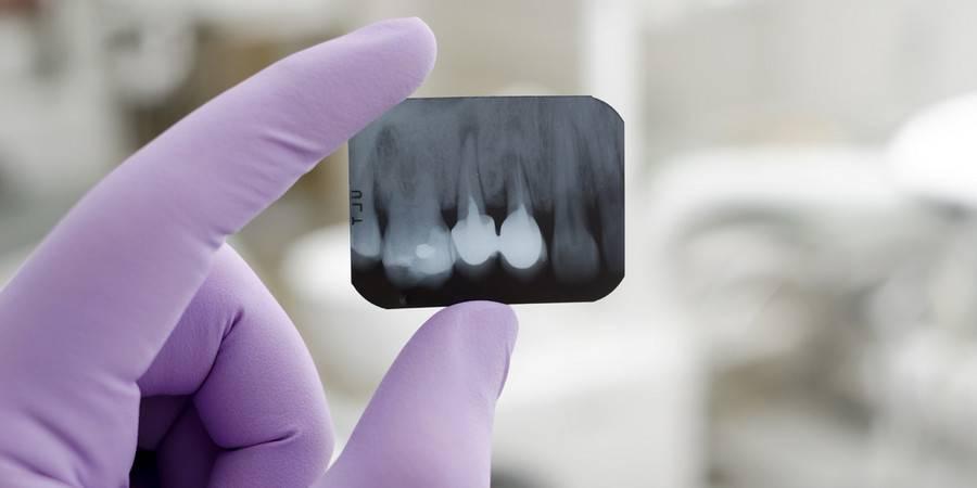 Конусно-лучевая компьютерная томография (клкт) зубов - 3d ортопантомограф в москве в клинике семейный доктор