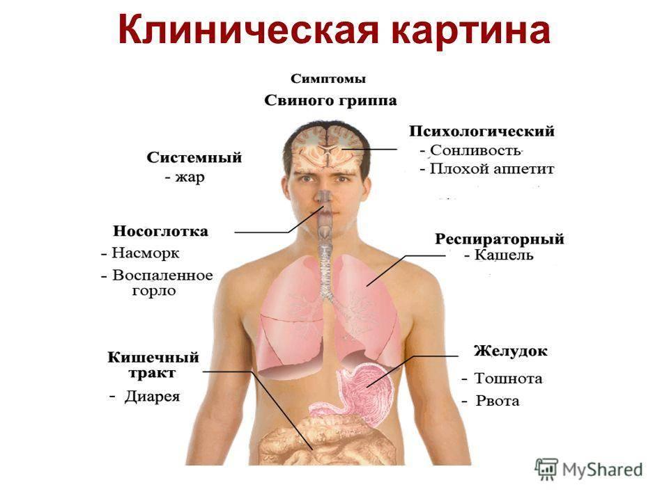 Грипп и его осложнения: что будет если не лечить грипп