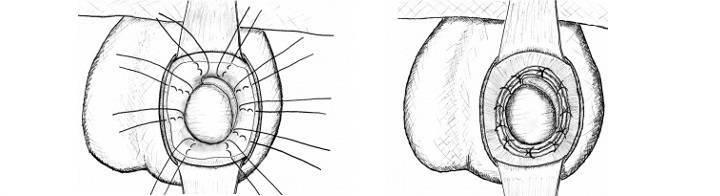 Водянка яичек (гидроцеле): диагностика и лечение