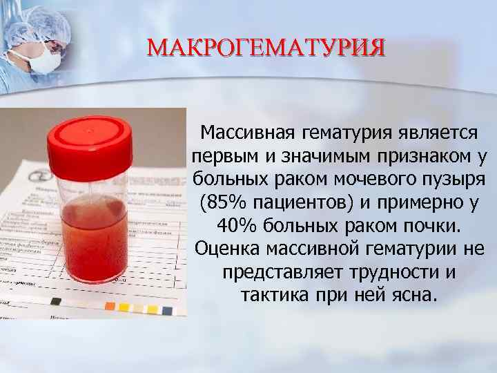 Кровь в моче: причины | eurolab | урология