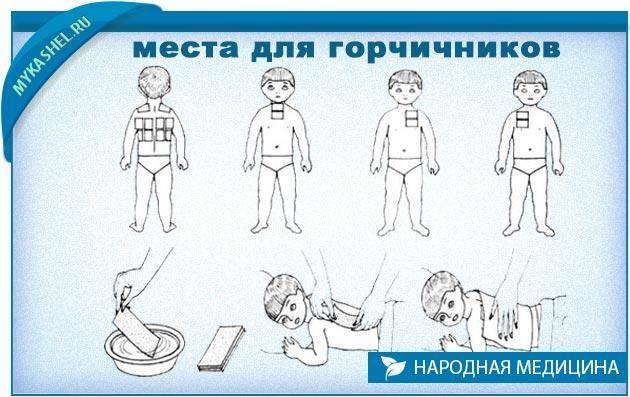 Горчичники детям при кашле и бронхите: как правильно ставить - фото, техника