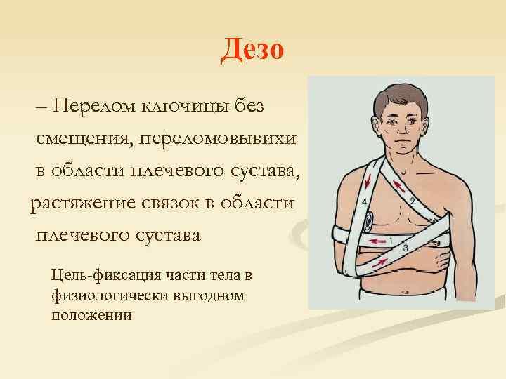Перелом ключицы | симптомы и лечение перелома ключицы | компетентно о здоровье на ilive