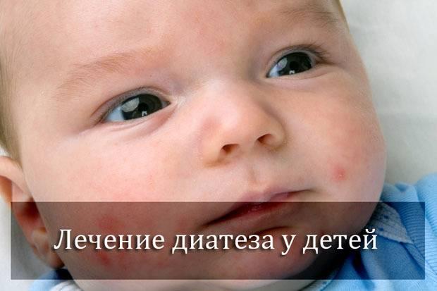 Диатез у ребенка: почему и что делать