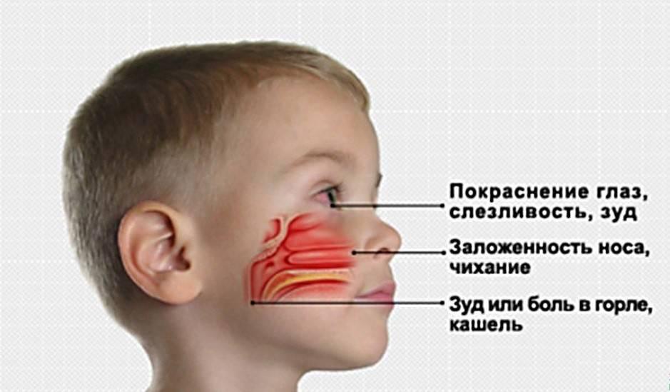 Кровь из носа у ребенка и взрослого: причины носового кровотечения и что делать – напоправку
