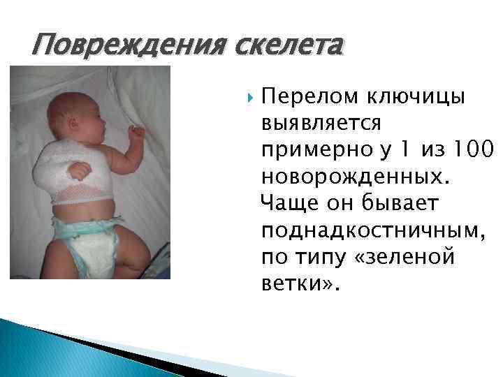 Перелом ключицы у новорожденного при родах: последствия для ребенка