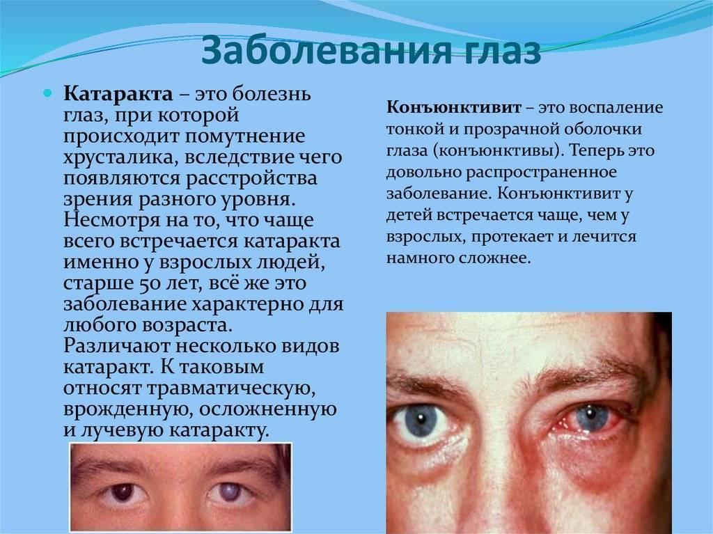 Болезни зрения и глаз у детей - список, виды, причины, симптомы, лечение