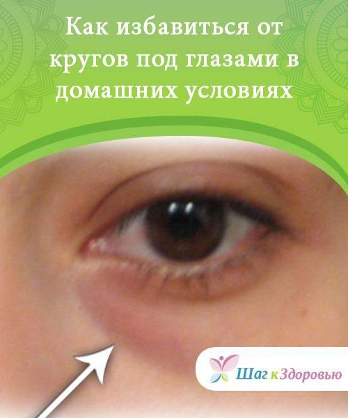 Пигментация роговицы глаза. причины цветовых пятен роговицы глаза, виды и возможное лечение!