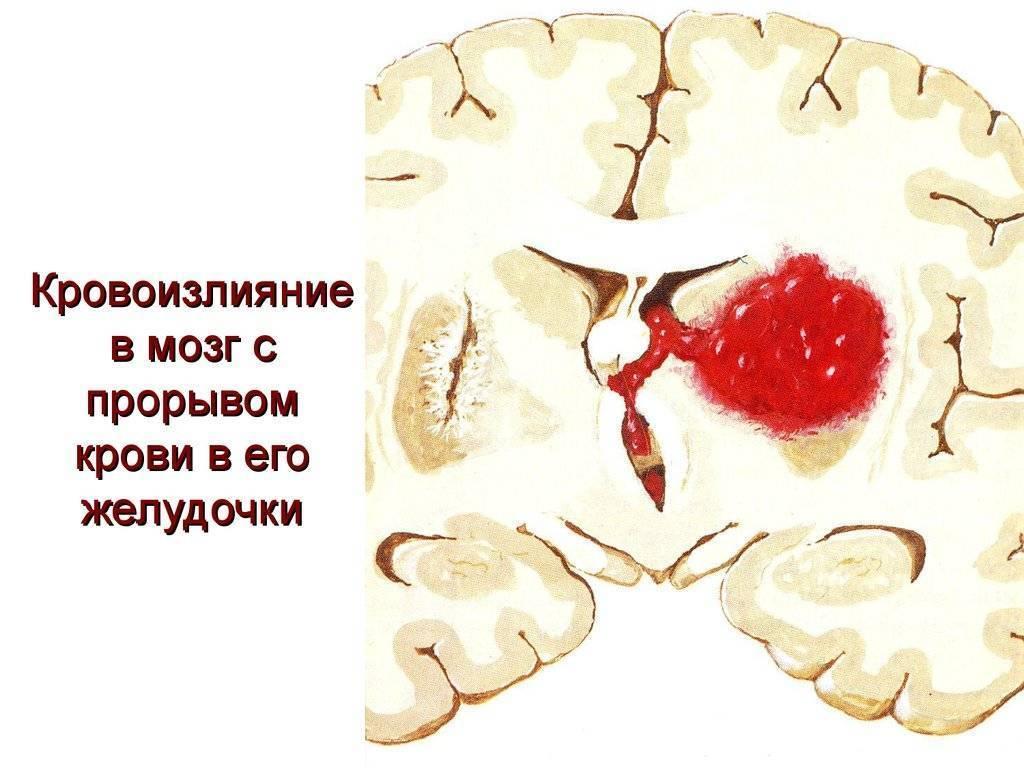 Родовые травмы головы  - симптомы болезни, профилактика и лечение родовые травмы головы , причины заболевания и его диагностика на eurolab