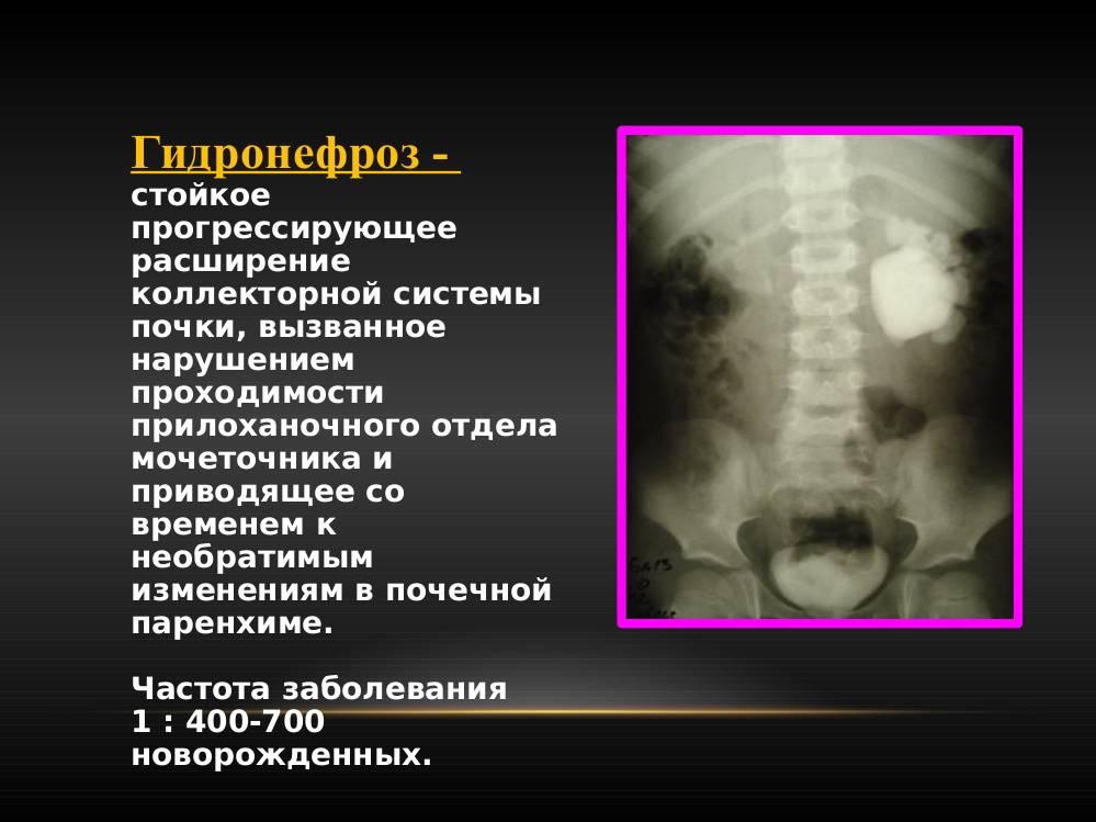 Нефроптоз опущение почки лечение