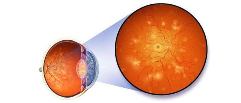 Какие наследственные заболевания глаз существуют?