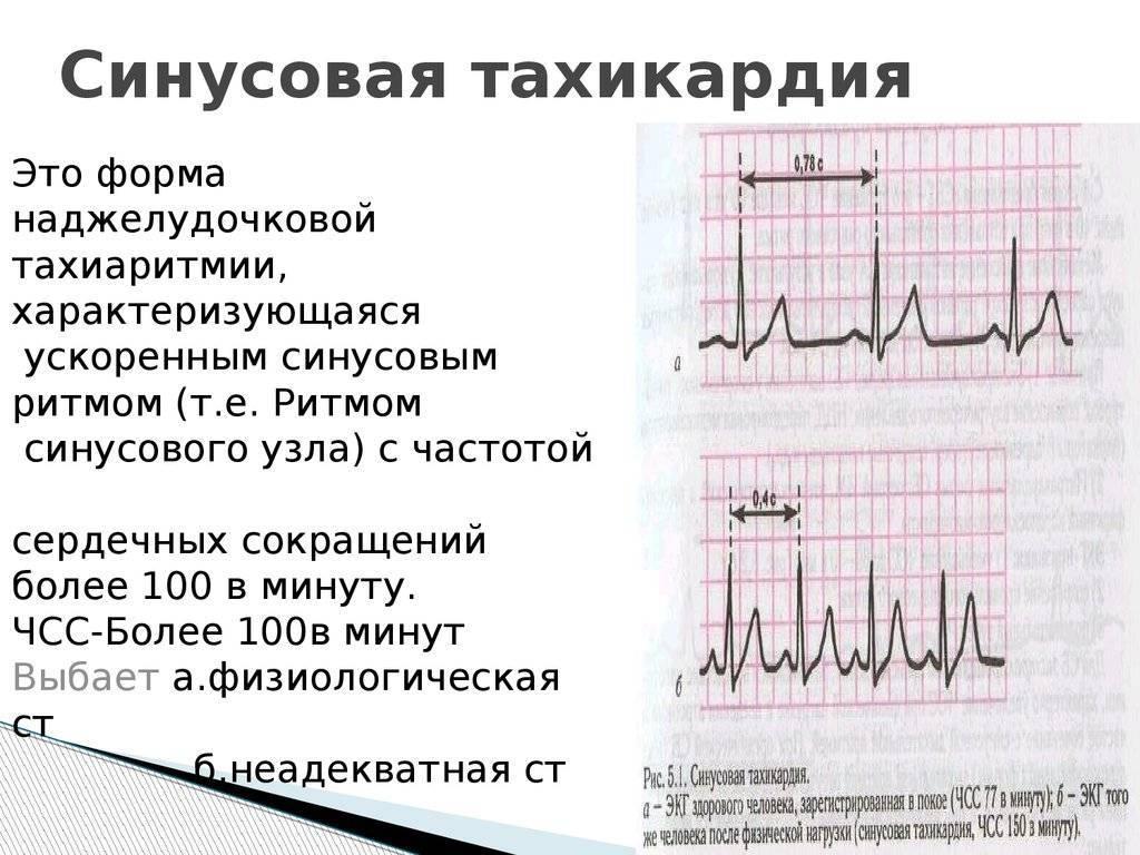 Тахикардия синусовая